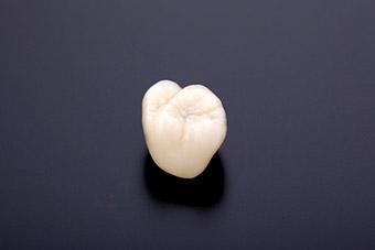 フルジルコニア(臼歯)